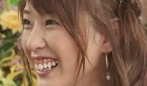 戸田恵梨香の馬のような歯茎をガミースマイル治療&歯並びを治した ...